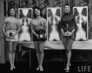 winning-models-marianne-baba-l-lois-conway-c-and-ruth-swensen-standing-next-to-plates-of-their-x-ray-during-a-chiropractor-beauty-contest-via-grungegeekdesign